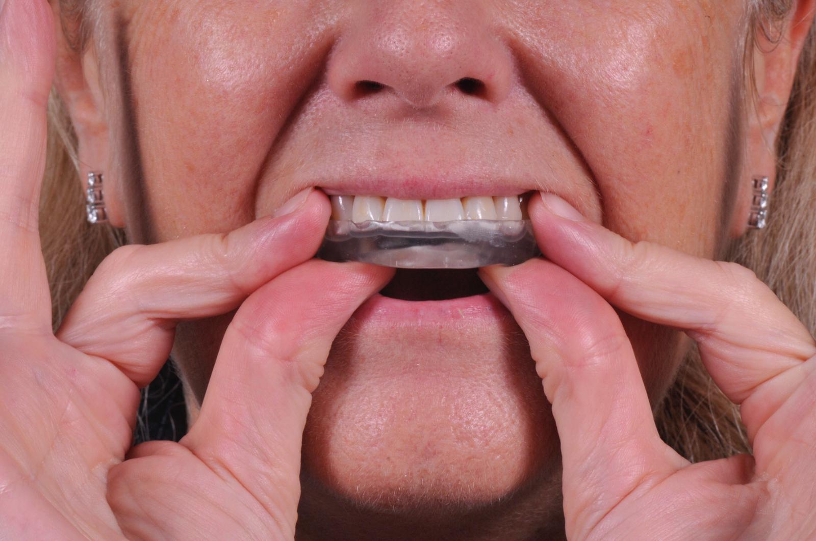 ferula bruxismo ortodoncia